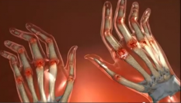 Cum se trateaza artrita reumatoida?